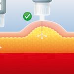 Nutzen und Vorteile guter Injektionstechnik Diabetesmanagment Diabetesmanagement – Nutzen und Vorteile guter Injektionstechnik