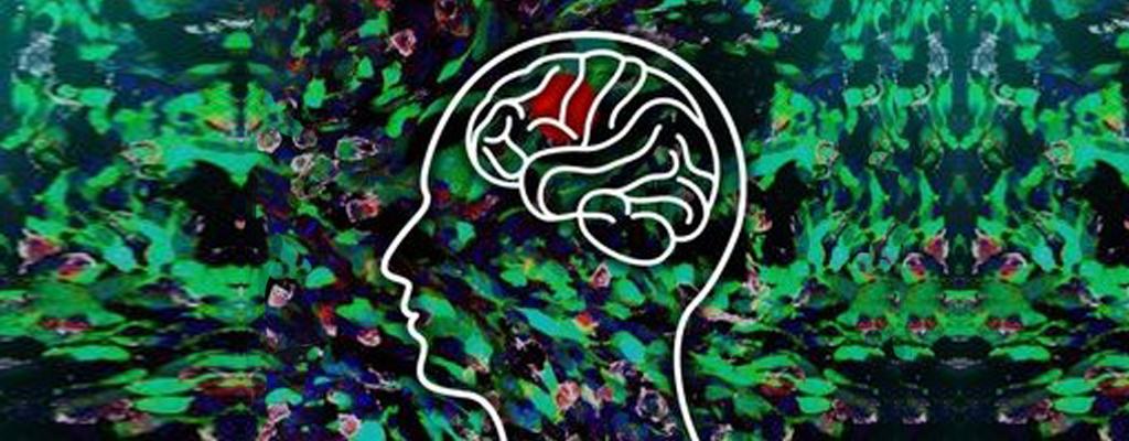 Wachstumsmechanismus bei Hirntumoren entdeckt