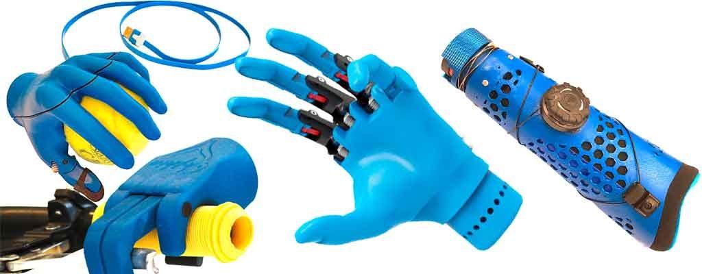 Kinderhandprothese aus dem 3-D-Drucker