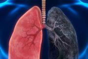 Neues Krebsrisiko-Vorhersagemodell