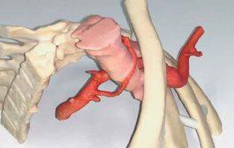 3D - Druck am Universitätsspital Basel